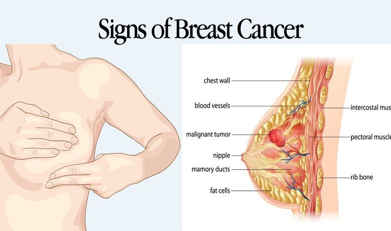 What Are The Early Symptoms Signs Of Breast Cancer Reca Blog