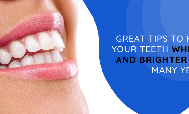 6 Great Tips to keep your Teeth Whiter and Brighter for Many Years - Emergency Dentist London