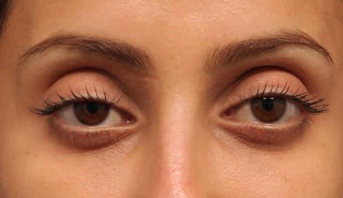How To Get Rid Of Sunken Eyes - Fashion- Reca Blog