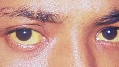 Photo of Treatment for Jaundice – Things You Should Know About This Condition