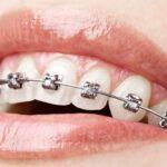 Teeth Alignment Treatments