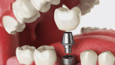 Photo of useful point of maintenance of dental implants in daily life